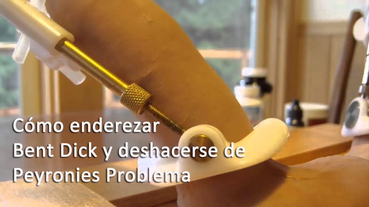 Cómo enderezar Bent Dick y deshacerse de Peyronies Problema