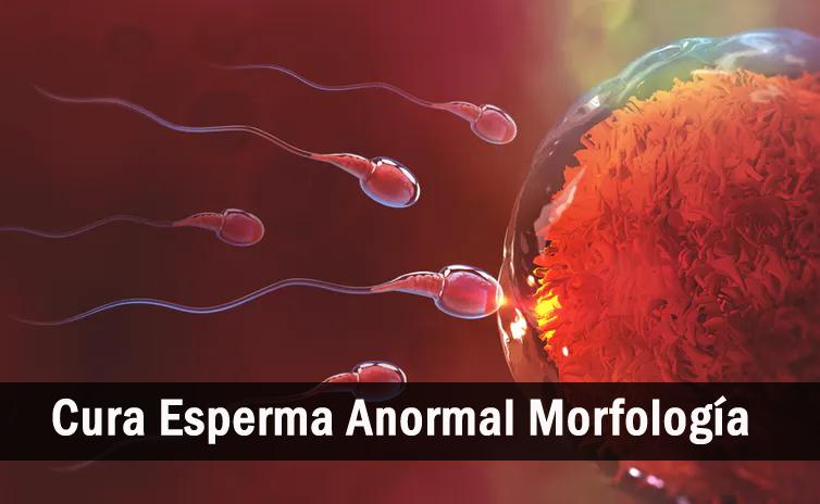 sobre la morfología anormal de los espermatozoides