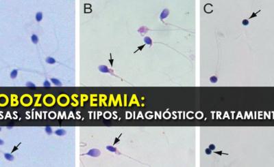 Globozoospermia: causas, síntomas, tipos, diagnóstico, tratamientos