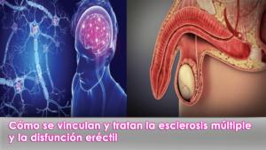 Cómo se vinculan y tratan la esclerosis múltiple y la disfunción eréctil