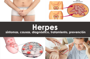 Herpes: síntomas, causas, diagnóstico, tratamiento, prevención
