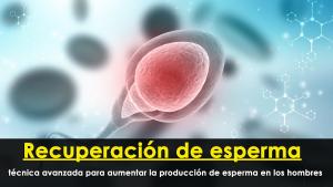Recuperación de esperma: técnica avanzada para aumentar la producción de esperma en los hombres